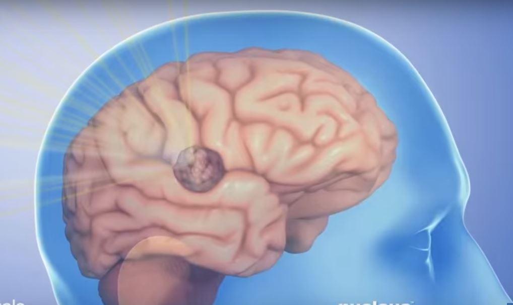 Радиоволны и мониторинг в реальном времени помогают уничтожить опухоли головного мозга