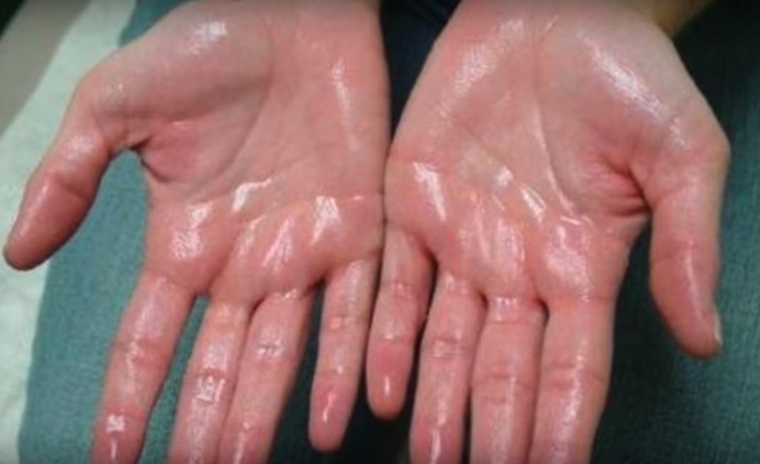 Анализ пота способен частично заменить анализ крови