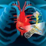 Ученые создают кардиостимуляторы способные использовать энергию сердцебиения для зарядки аккумуляторов