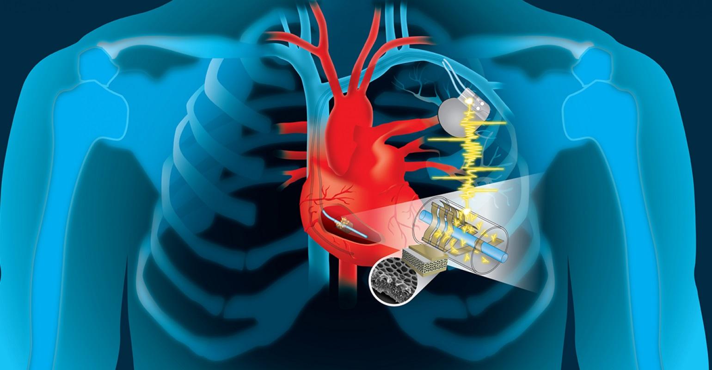 Сердцебиение способно заряжать медицинские устройства